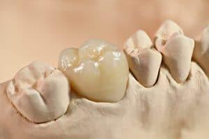 houston dentist crown