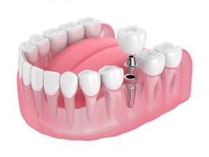 houston dental implants