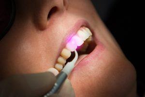 houston dental laser