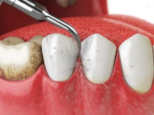 houston dental cleaning visit