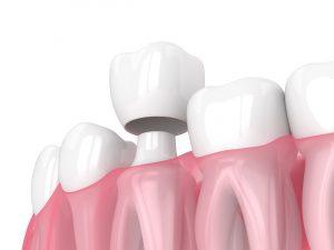 houston dental crowns
