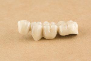 houston dental bridges