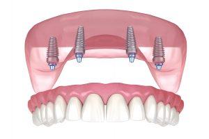 houston implant dentures