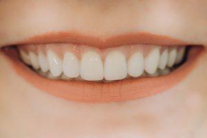 houston dental veneers